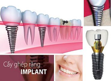 nha-khoa-nghe-an-cay-ghep-implant.jpg