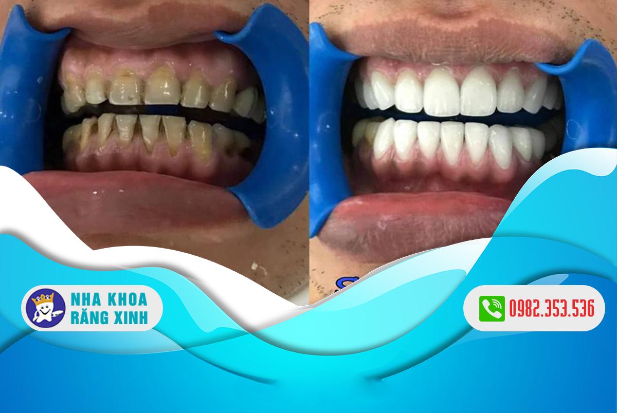 Bọc răng sứ thẩm mỹ có nên hay không?