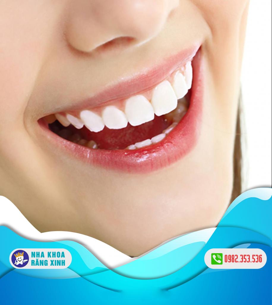 tại sao cần khám răng miệng định kỳ