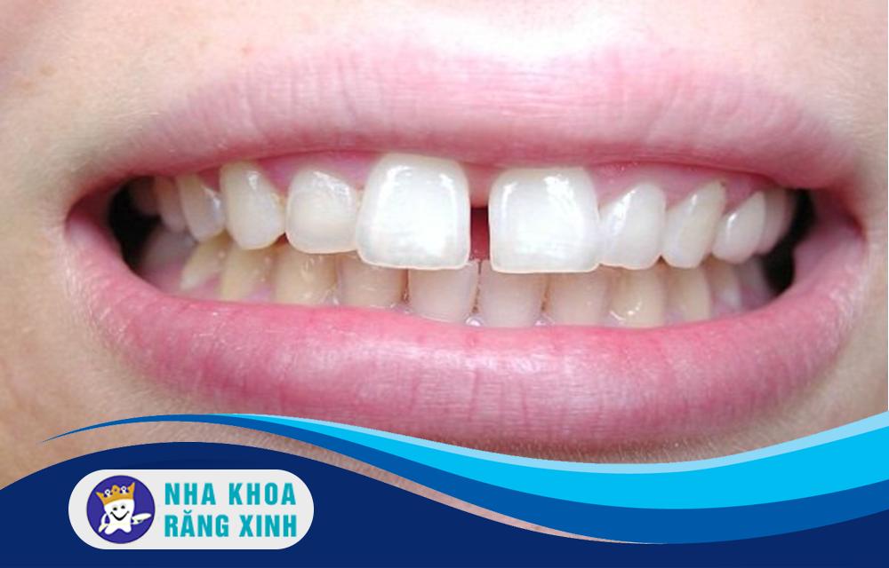 Chỉnh răng thưa có những phương pháp nào?
