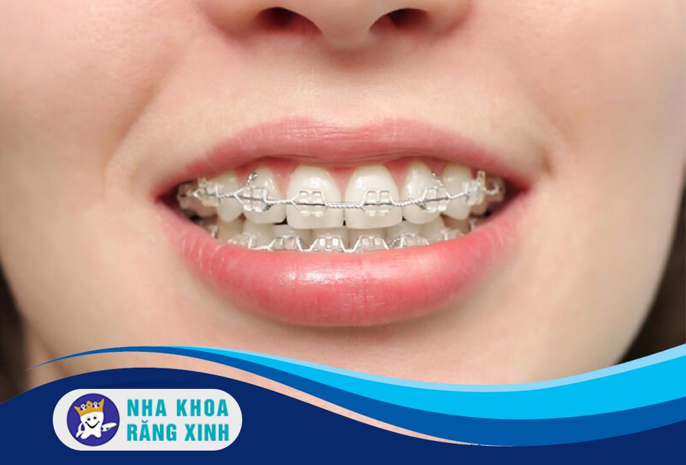 niềng răng hô có tác dụng gì