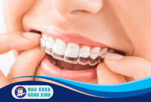 các loại niềng răng phổ biến