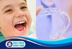 tình trạng răng hô cho bé