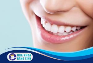 lợi ích tuyệt vời của việc bọc răng sứ