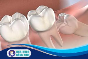 nhổ răng khôn có ảnh hưởng đến thần kinh không
