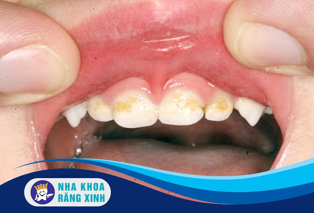 nguyên nhân gây chảy máu nướu răng là gì