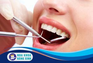 nhổ răng khôn an toàn hiệu quả tại vinh ở đâu