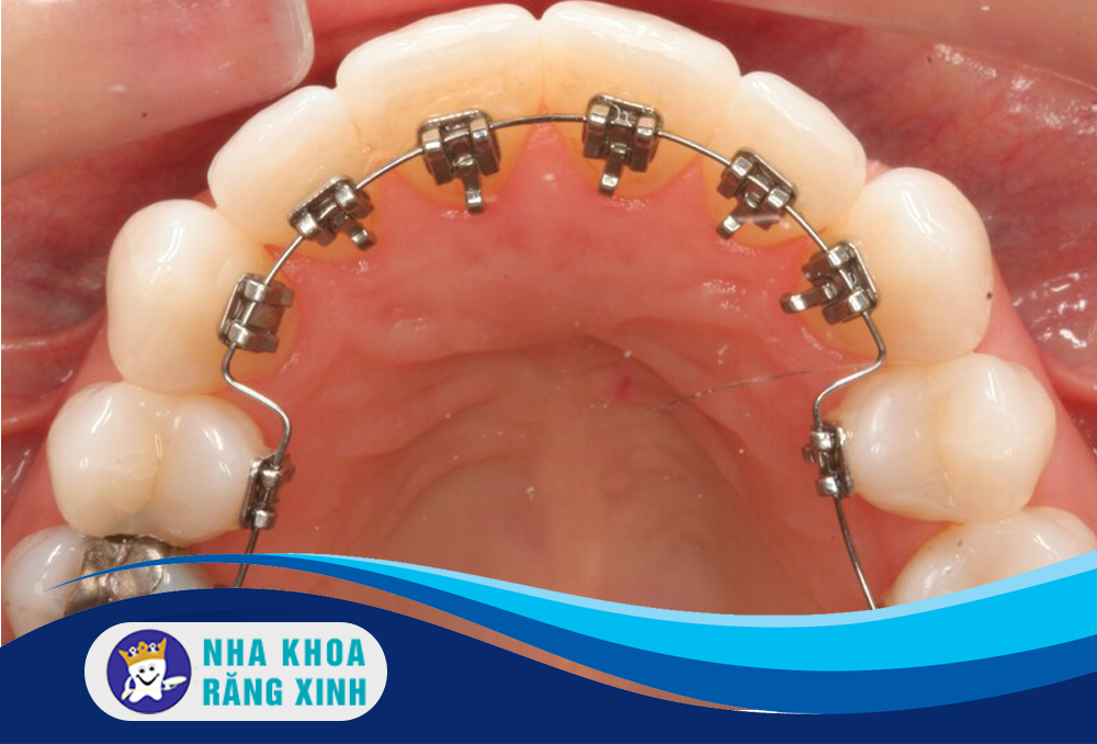 niềng răng mặt ngoài hay niềng răng mặt trong tốt hơn
