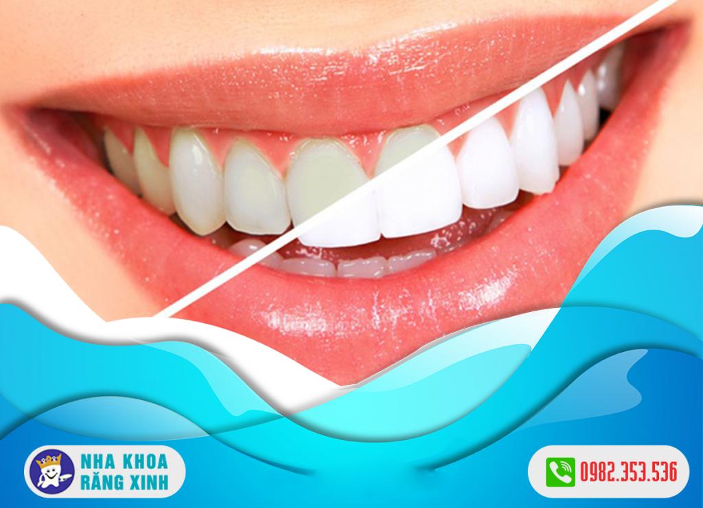 Tẩy trắng răng bị nhiễm kháng sinh có những đặc điểm gì ?