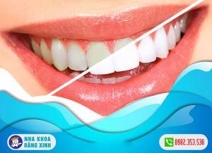 Chi phí tẩy trắng răng mới nhất năm 2021
