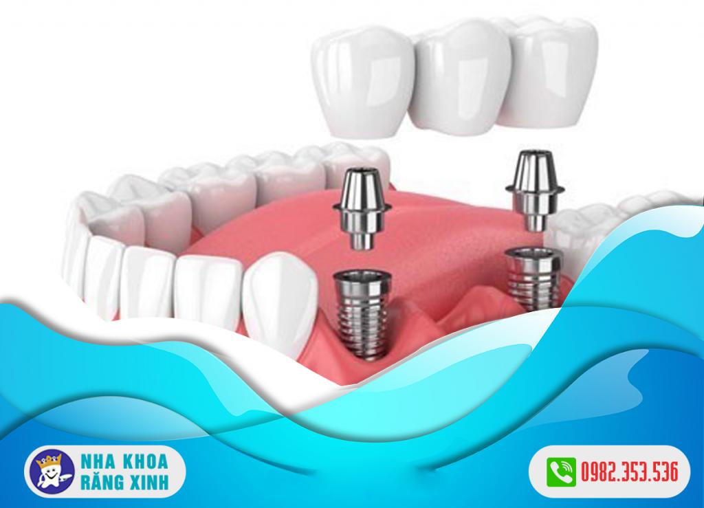trồng răng giả cố định có những phương pháp nào