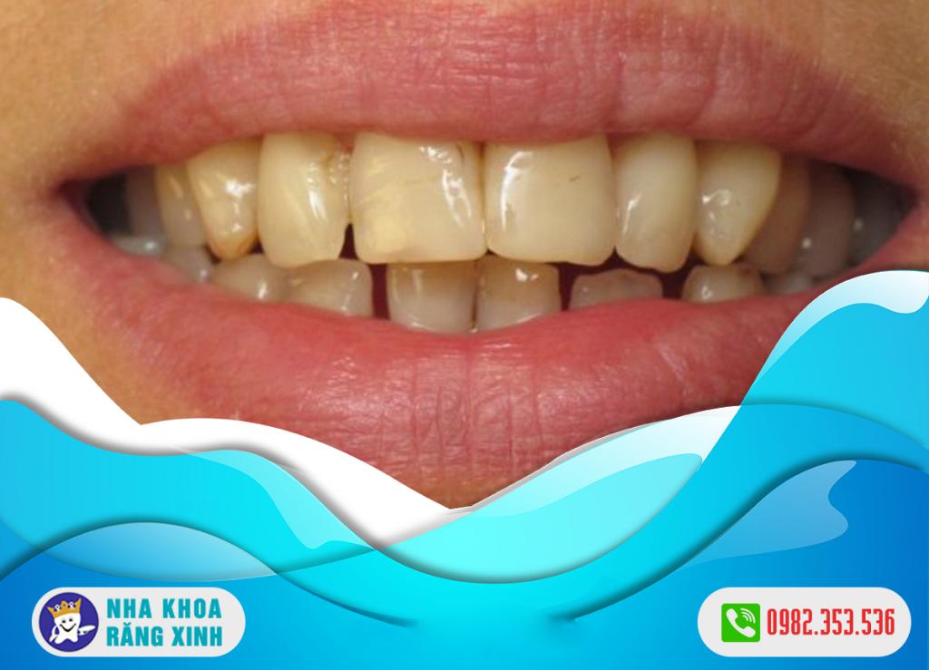 Men răng đen là biểu hiện của bệnh lý răng miệng nào