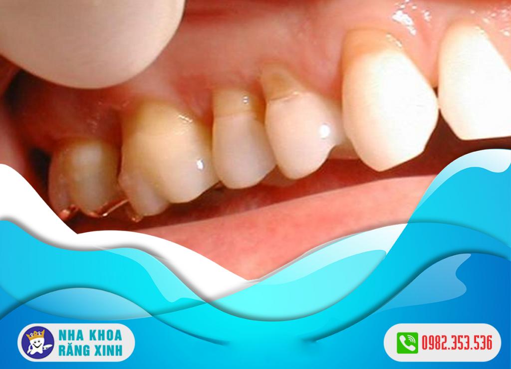 Chi phí điều trị khuyết cổ chân răng bao nhiêu ?